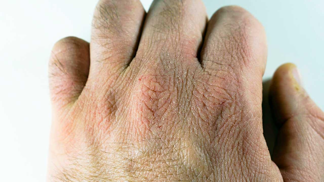 Hand mit trockenen Stellen