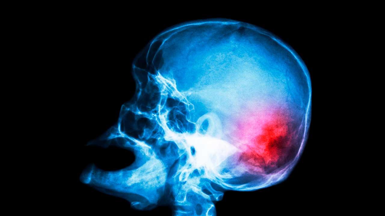 Röntgenbild bei einem Schlaganfall