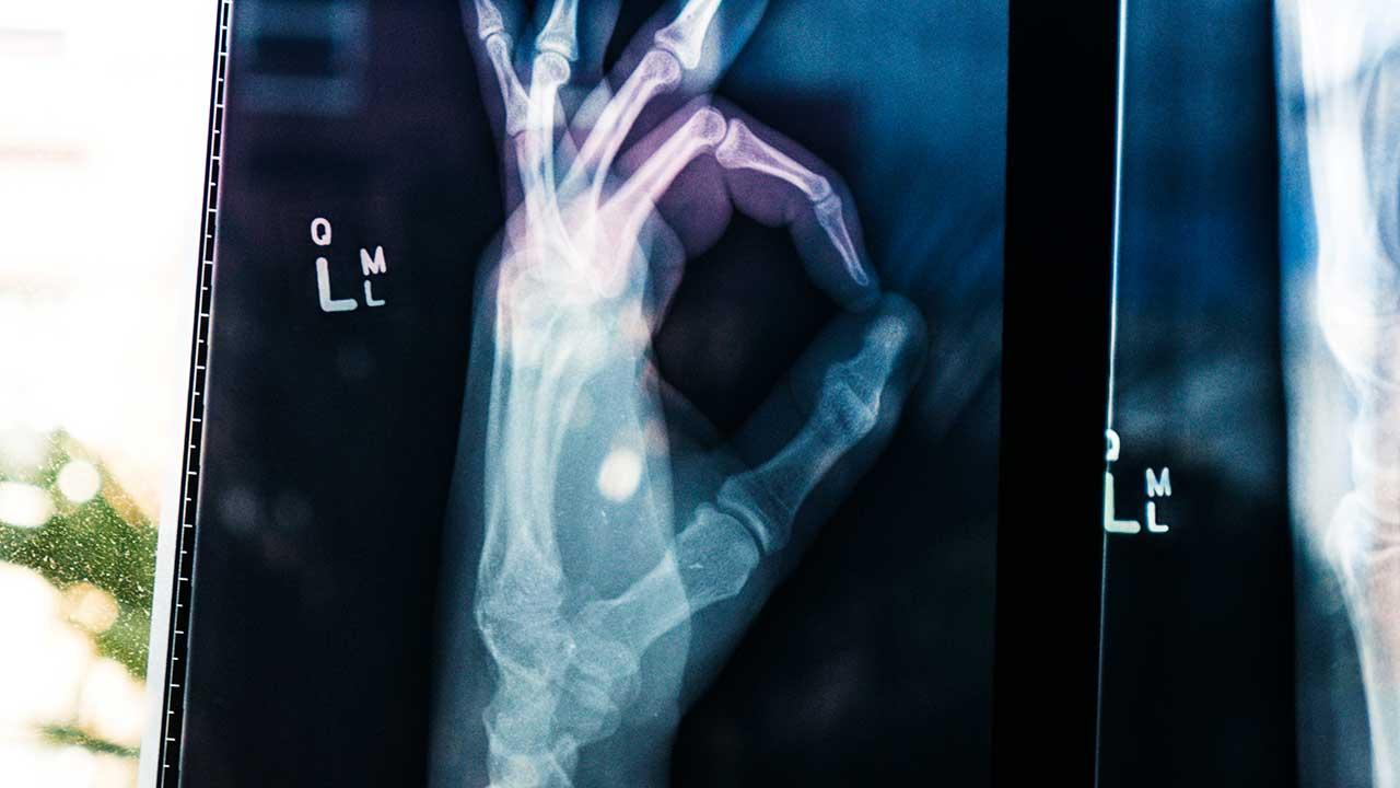 Geröngte Hand macht OK-Zeichen