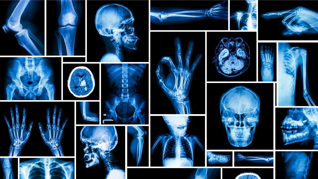 Röntgenbilder | (c) 123rf